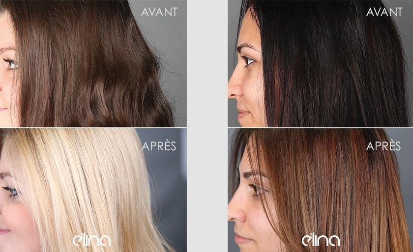 Les symptômes de la chute des cheveux hormonale